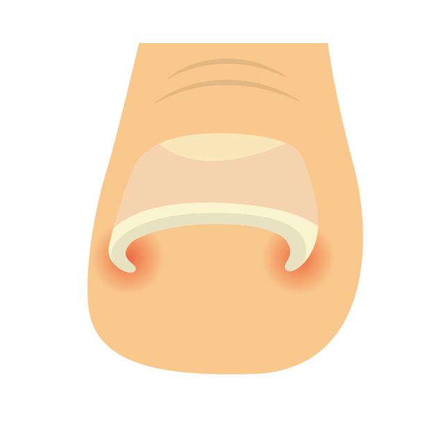 巻き爪,巻き爪 切り方,巻き爪 治療,巻き爪 治療 方法