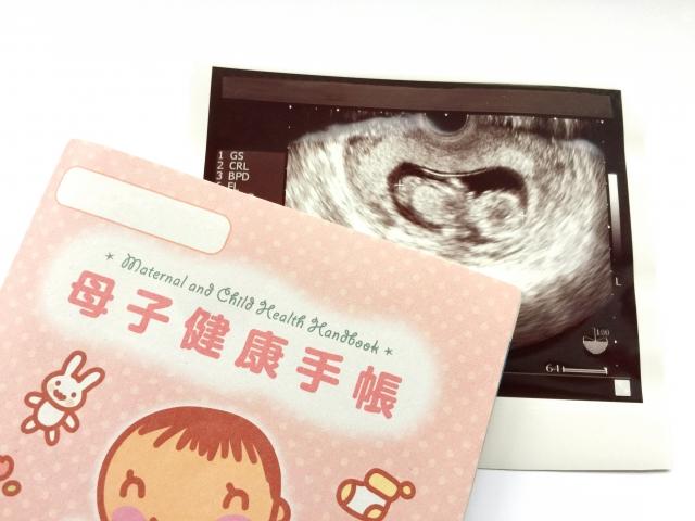 胎児ドップラー,胎児ドップラー 赤ちゃん,胎児ドップラー 赤ちゃん 影響,胎児ドップラー 赤ちゃん 心音