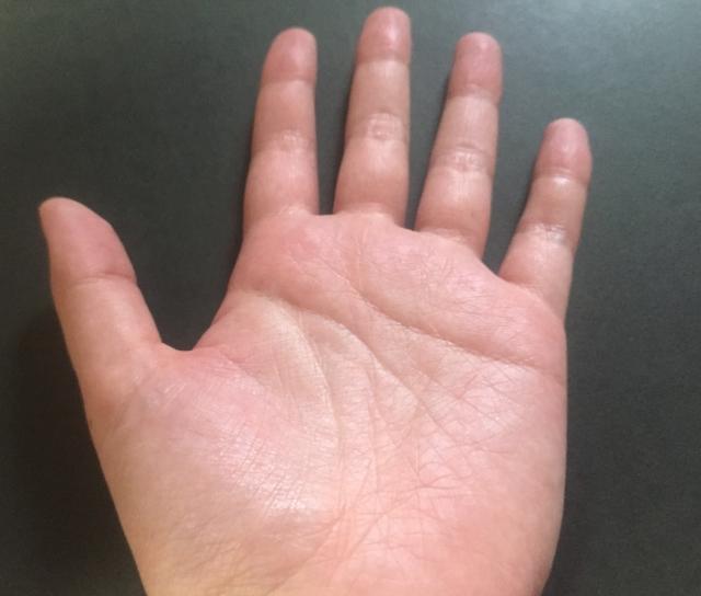 手,多汗症,仕事